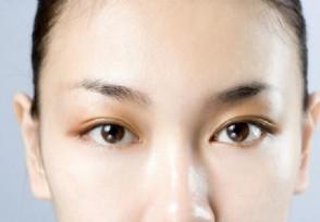 眼角细纹怎么消除